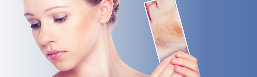 Покраснение и шелушение кожи лица Цинокап